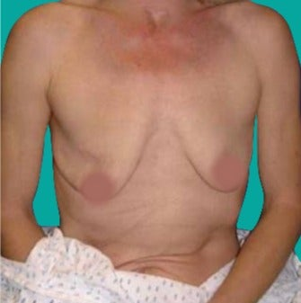 45-54 year old woman treated with Breast Augmentation before 3242208