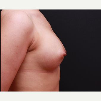25-34 year old woman treated with Breast Augmentation after 3167739