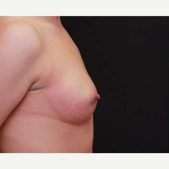 25-34 year old woman treated with Breast Augmentation before 3167739