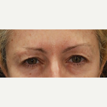 48 year old woman treated with Botox for frown lines/glabellar lines after 3000893