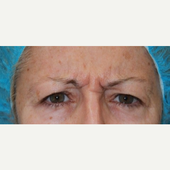 48 year old woman treated with Botox for frown lines/glabellar lines before 3000893