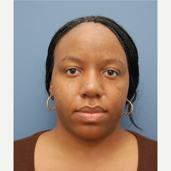 35-44 year old woman treated with African American Rhinoplasty after 3220485