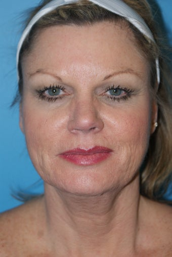 52 Year Old Female ~ Necklift before 1350455