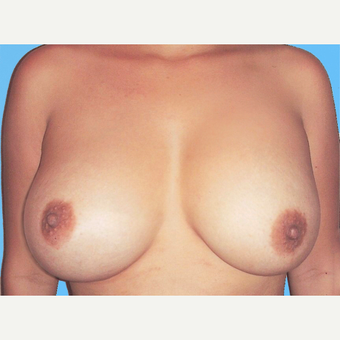 Breast Augmentation after 3731620