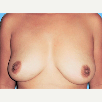 Breast Augmentation before 3731620
