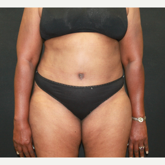 55-64 year old woman treated with Tummy Tuck after 3741357
