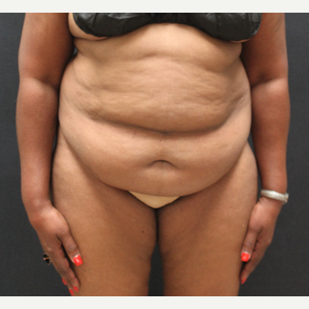 55-64 year old woman treated with Tummy Tuck before 3741357