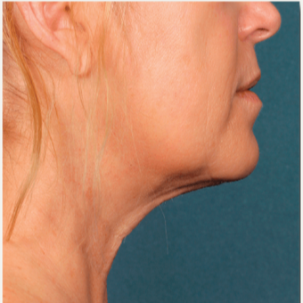 45-54 year old woman treated with Kybella after 2894204