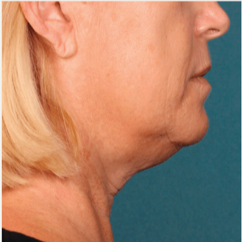 45-54 year old woman treated with Kybella before 2894204