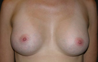 Before and After Classic Shaped Breast Augmentation after 1323819