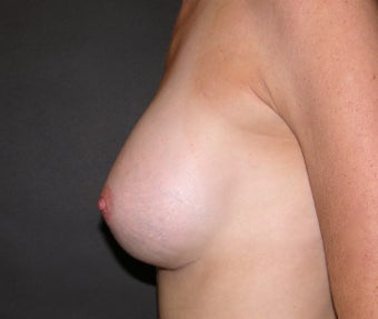 Before and After Classic Shaped Breast Augmentation 1323819