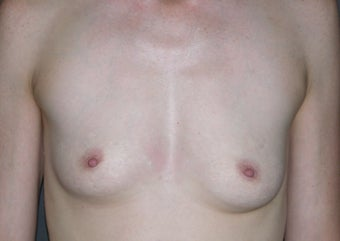 Before and After Classic Shaped Breast Augmentation before 1323819