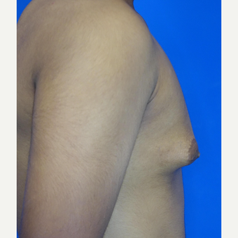 18-24 year old man treated with Male Breast Reduction before 3542888