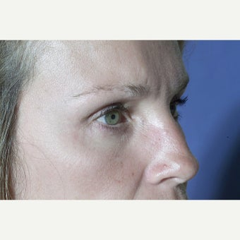 43 year old woman treated with Eyelid Surgery after 1603478