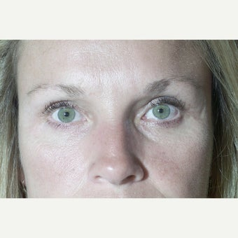 43 year old woman treated with Eyelid Surgery 1603478