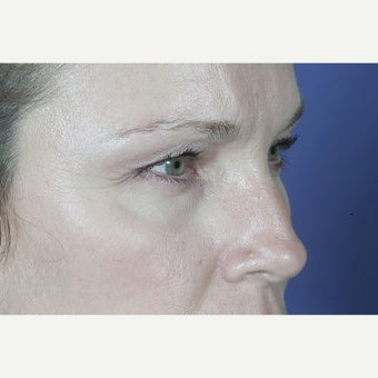 43 year old woman treated with Eyelid Surgery