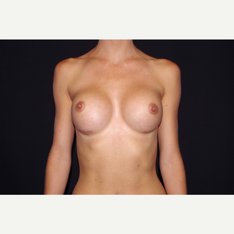 25-34 year old woman treated with Breast Augmentation after 3280843