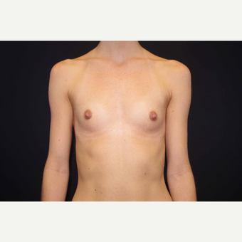 25-34 year old woman treated with Breast Augmentation before 3280843