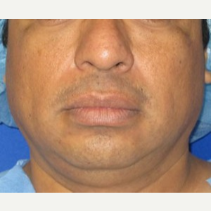 Chin Implant before 3141712