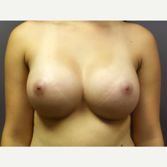 18-24 year old woman treated with Breast Augmentation after 3059786