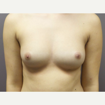 18-24 year old woman treated with Breast Augmentation before 3059786