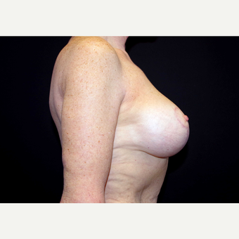55-64 year old woman treated with Breast Implants after 3440915