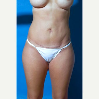 29 year old woman treated with Mini Tummy Tuck after 1602946