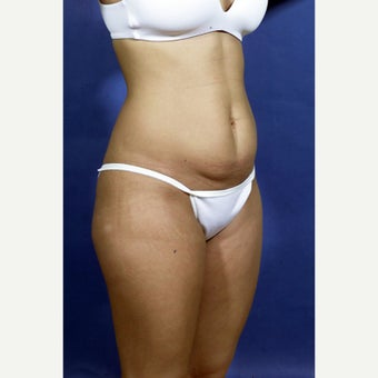 29 year old woman treated with Mini Tummy Tuck 1602946