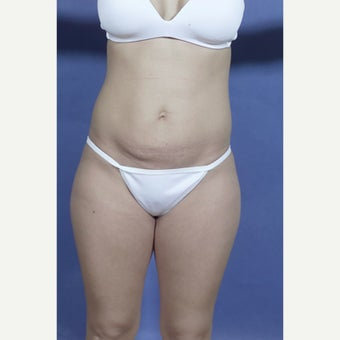 29 year old woman treated with Mini Tummy Tuck before 1602946