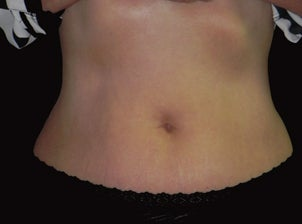 Vanquish - Non Invasive Fat Reduction to Abdomen after 1366551