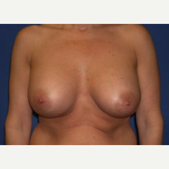 35-44 year old woman treated with Breast Augmentation after 3220033