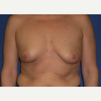 35-44 year old woman treated with Breast Augmentation before 3220033
