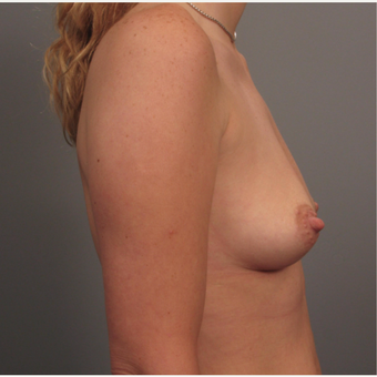 35-44 year old woman treated with Breast Augmentation with Strattice before 3293062