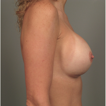 35-44 year old woman treated with Breast Augmentation with Strattice after 3293062