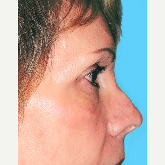 Rhinoplasty before 3814307
