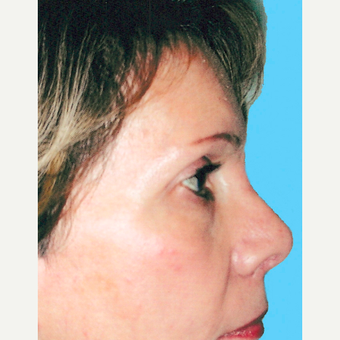 Rhinoplasty after 3814307