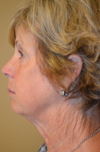 55-64 year old woman treated with Facelift, Browlift, Upper and Lower Blepharoplasty 3371210