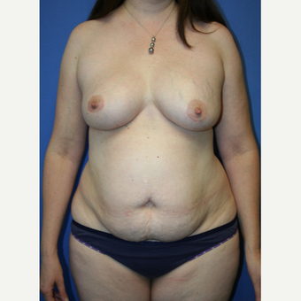 45-54 year old woman treated with Mommy Makeover before 2993998
