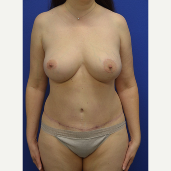 45-54 year old woman treated with Mommy Makeover after 2993998