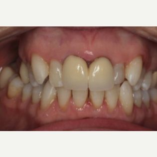 65-74 year old woman treated with Porcelain Veneers before 3241365