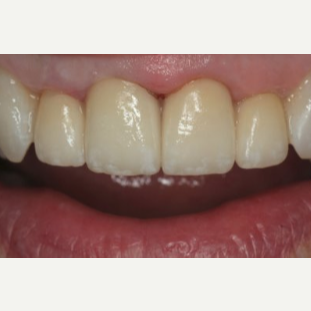 65-74 year old woman treated with Porcelain Veneers after 3241365