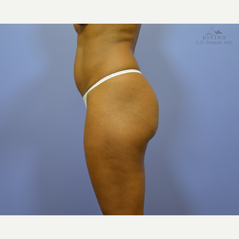 35-44 year old woman treated with Butt Augmentation before 3421230
