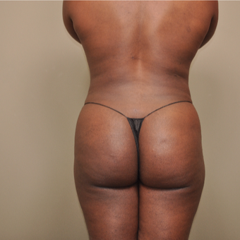 25-34 year old woman treated with Brazilian Butt Lift after 3446635