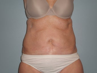 58 Y.O Woman, Full Abdominoplasty with Flank Liposuction. before 1220888