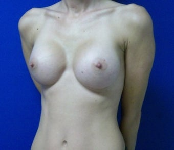 38 year old female, originally a 36a bra size. She received Mentor High Profile Silicone 350cc implants. Photos are 5 months PO. after 1012778