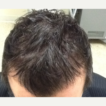 35-44 year old man treated with Hair Loss Treatment after 3506327