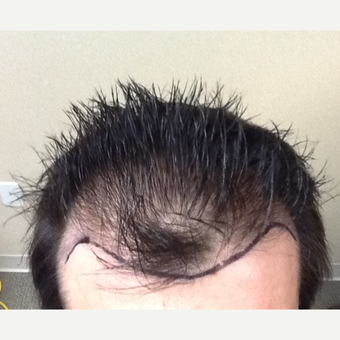 35-44 year old man treated with Hair Loss Treatment before 3506327
