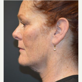 Female Patient One Month After One Kybella Treatment before 2030406