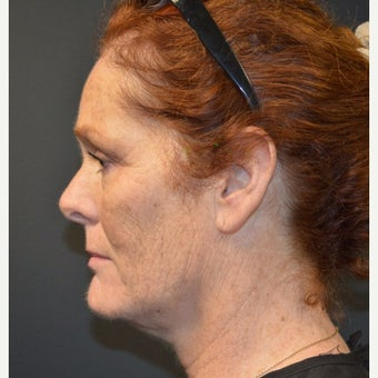 Female Patient One Month After One Kybella Treatment after 2030406
