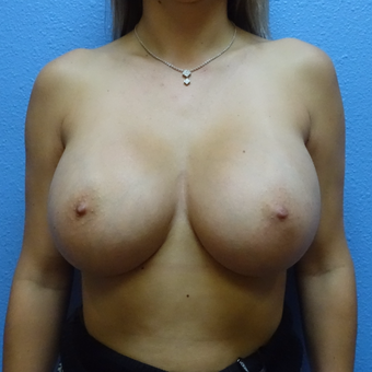 25-34 year old woman treated with Breast Augmentation after 3137446